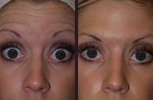 Before and After Photo: Botox for Forehead Lines