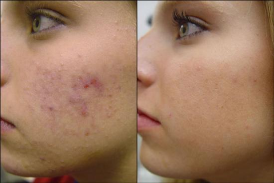 Before and After Photo - Blue Peel for Acne