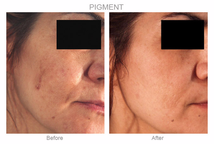 Before and After Photo - Blue Peel for Hyperpigmentation
