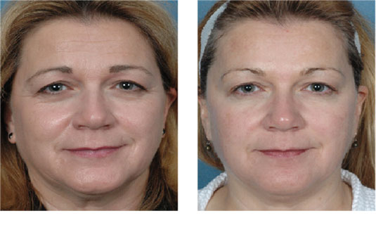 Before and After Photo - Blue Peel for Skin Rejuvenation and Tightening
