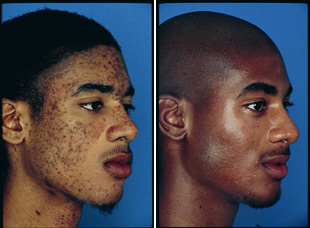 Before and After Photo - Blue Peel on Dark Skin
