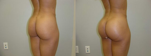 Before and After Photo: Body Contouring #5