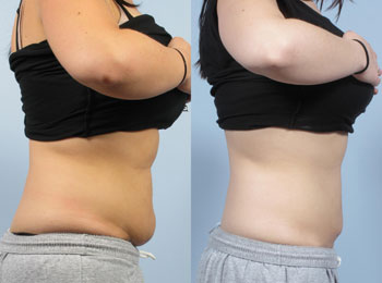 Before and After Photo: Body Jet #1
