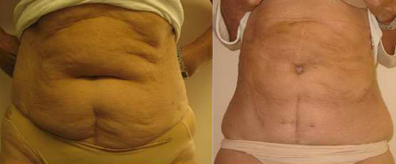 Before and After Photo: Body Jet #2