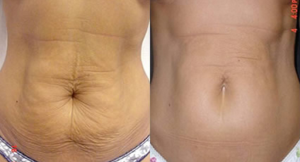 Before and After Photo: Body Jet #3