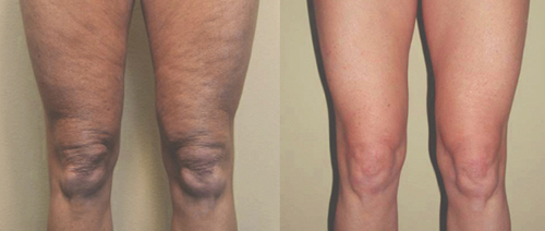 Before and After Photo: Body Jet #4