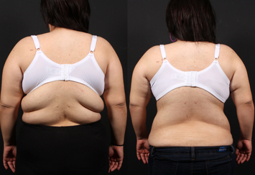 Before and After Photo: Bra Line Back Lift #3