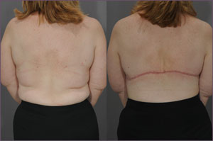 Before and After Photo: Bra Line Back Lift #4