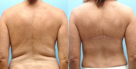 Before and After Photo: Bra Line Back Lift #5