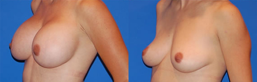 Before and After Photo: Breast Implant Removal #1
