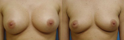 Before and After Photo: Breast Implant Removal #2