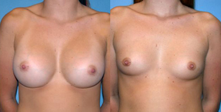 Before and After Photo: Breast Implant Removal #3