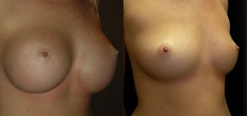 Before and After Photo: Breast Implant Removal #4
