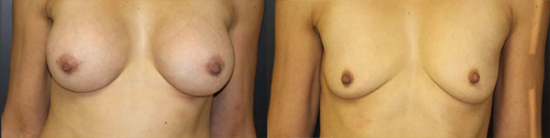 Before and After Photo: Breast Implant Removal #5
