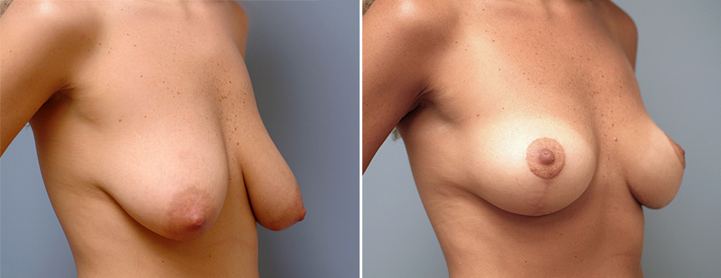 Before and After Photo: Breast Lift #1