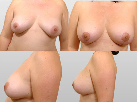 Before and After Photo: Breast Lift #2