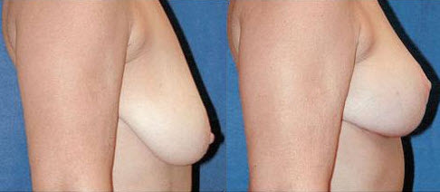 Before and After Photo: Breast Lift #3