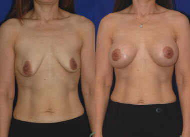 Before and After Photo: Breast Lift #4