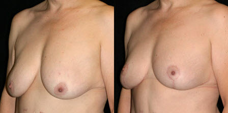 Before and After Photo: Breast Lift #5