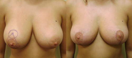 Before and After Photo: Breast Liposuction #2