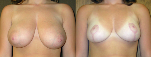 Before and After Photo: Breast Liposuction #3