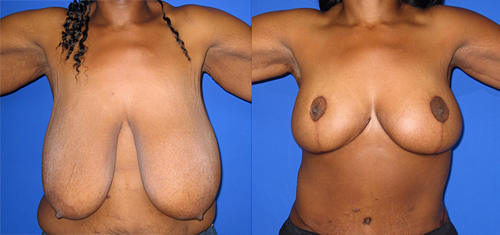 Before and After Photo: Breast Liposuction #4