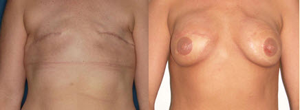 Before and After Photo: Breast Reconstruction #1