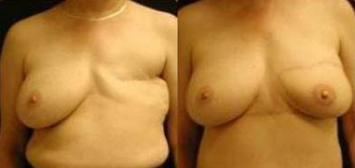 Before and After Photo: Breast Reconstruction #2