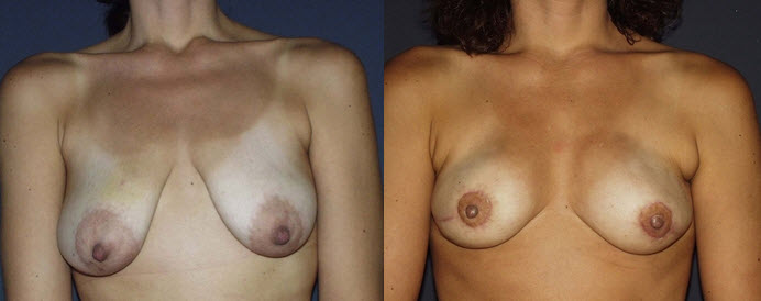 Before and After Photo: Breast Reconstruction #3