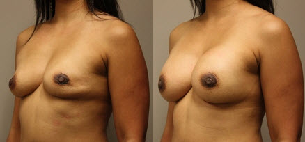 Before and After Photo: Breast Reconstruction #4