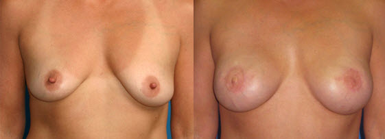 Before and After Photo: Breast Reconstruction #5