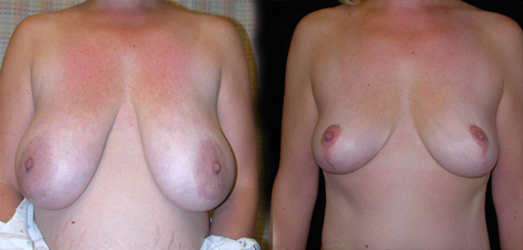 Before and After Photo: Breast Reduction #1