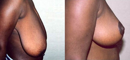 Before and After Photo: Breast Reduction #3