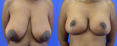 Before and After Photo: Breast Reduction #4