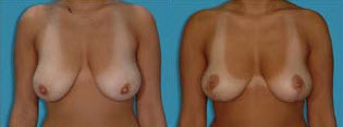 Before and After Photo: Breast Reduction #5