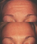 Before and After Photo: Brow Lift #2