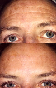 Before and After Photo: Brow Lift #3