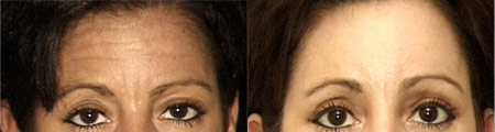 Before and After Photo: Brow Lift #1