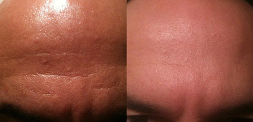 Before and After Photo: Brow Lift #4