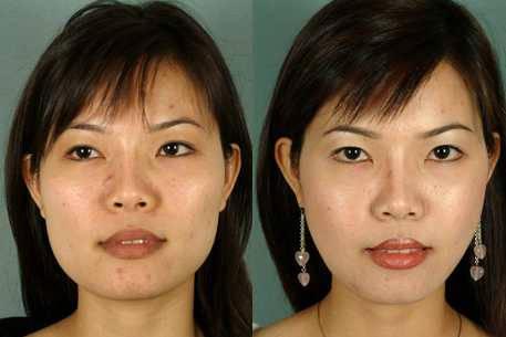 Before and After Photo: Buccal Fat Removal #1