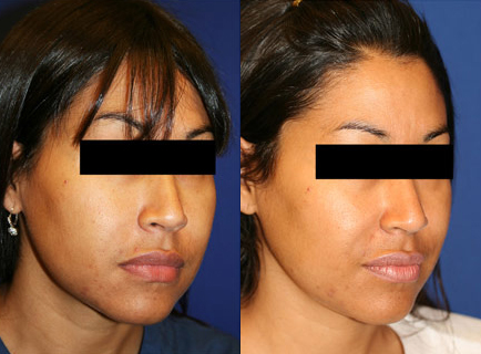 Before and After Photo: Buccal Fat Removal #2