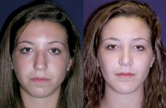 Before and After Photo: Buccal Fat Removal #3