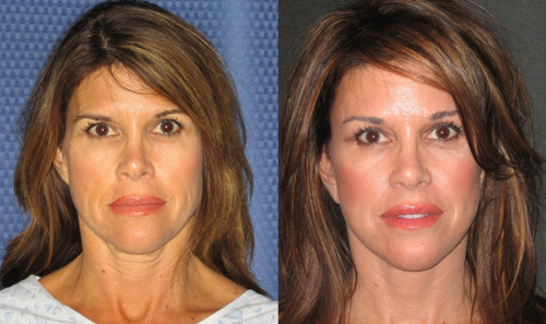 Before and After Photo: Buccal Fat Removal #4
