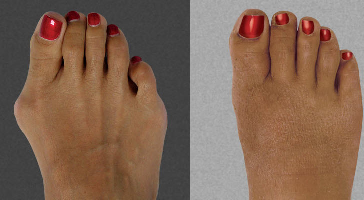 Before and After Photo: Bunion Surgery #1