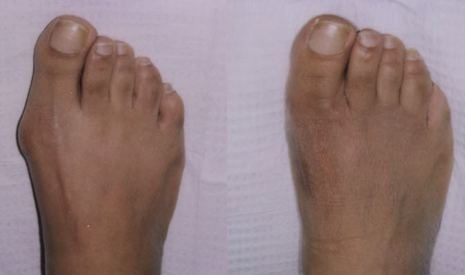 Before and After Photo: Bunion Surgery #3
