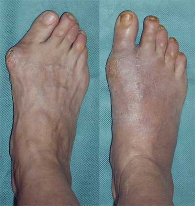 Before and After Photo: Bunion Surgery #4