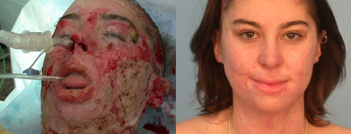 Before and After Photo: Burn Surgery #4