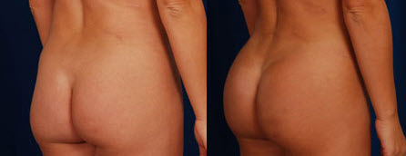 Before and After Photo: Butt Augmentation #1