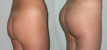 Before and After Photo: Butt Augmentation #3