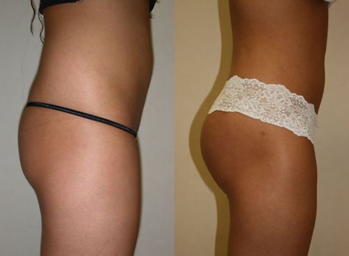 Before and After Photo: Butt Lift #1